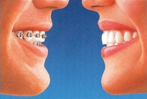 on the left, a mouth smiles with traditional braces; on the right, a mouth smiles with Invisalign invisible aligners.