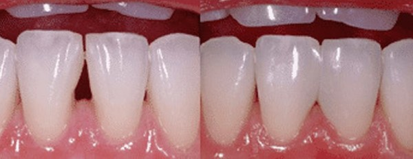 on the right, a before picture of teeth with black triangles. On the left, those small openings have been closed after a Bioclear treatment