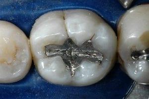 teeth with amalgam metal fillings