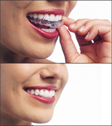 two photos, one above the other, of a woman's mouth. In the top image, she is inserting an Invisalign tray. In the bottom, the tray is in place but you can't see it.