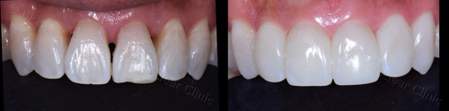 Bioclear Clinic photos of root overlay, black triangle closure, and incisal overlay with Bioclear, which is available in Dallas, TX from Rehka Reddy, DDS.