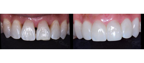 Before-and-after upper front teeth treated with Bioclear; avaialbe in Dallas, TX from Rehka Reddy, DDS