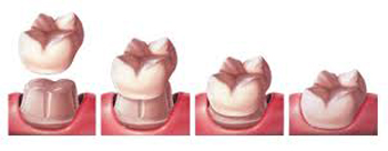 Diagram of dental crowns process, which must be problem-free before orthodontics